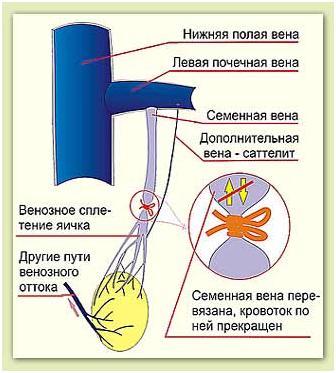 domashniy-russkiy-seks-domashnie-kollektsii